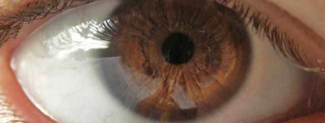 Q&A: open-angle glaucoma?